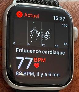 Apple Watch Diabete